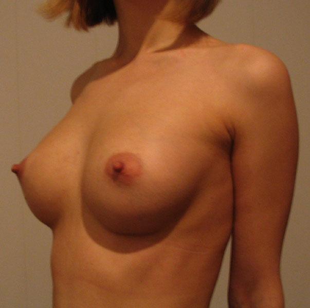 формы женской груди голое фото